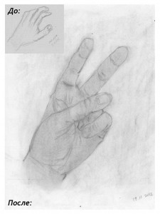 Моя рука, до и после.